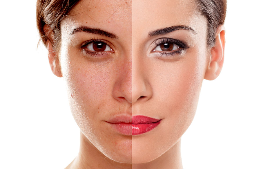 Những điều có thể bạn chưa biết về việc bị nám da